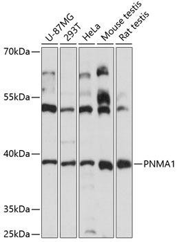 Immunology Antibodies 1 Anti-PNMA1 Antibody CAB14558