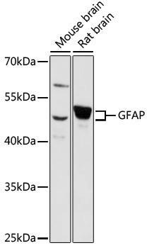 Cell Biology Antibodies 5 Anti-GFAP Antibody CAB14673