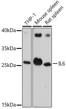 Immunology Antibodies 1 Anti-IL-6 Antibody CAB14687