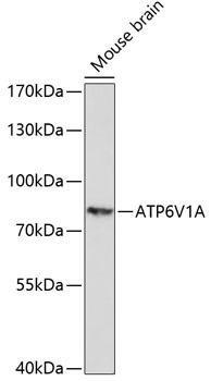 Signal Transduction Antibodies 1 Anti-ATP6V1A Antibody CAB14707