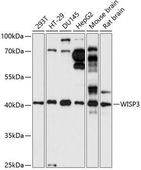 Immunology Antibodies 1 Anti-WISP3 Antibody CAB14812