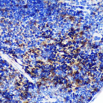 Immunology Antibodies 1 Anti-SWAP70 Antibody CAB14857