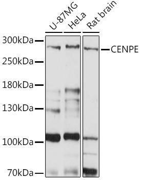 Cell Cycle Antibodies 1 Anti-CENPE Antibody CAB15263