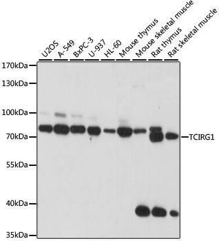 Signal Transduction Antibodies 2 Anti-TCIRG1 Antibody CAB15382