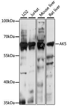 Signal Transduction Antibodies 2 Anti-AK5 Antibody CAB15424