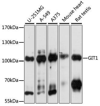 KO Validated Antibodies 1 Anti-GIT1 Antibody CAB15437KO Validated