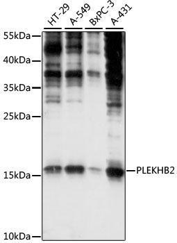 Signal Transduction Antibodies 2 Anti-PLEKHB2 Antibody CAB15462