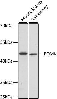 Signal Transduction Antibodies 2 Anti-POMK Antibody CAB15529
