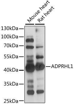 Signal Transduction Antibodies 2 Anti-ADPRHL1 Antibody CAB15553