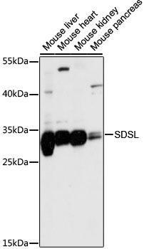 Signal Transduction Antibodies 2 Anti-SDSL Antibody CAB15554