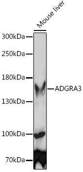 Signal Transduction Antibodies 2 Anti-ADGRA3 Antibody CAB15573