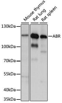 Signal Transduction Antibodies 2 Anti-ABR Antibody CAB15635