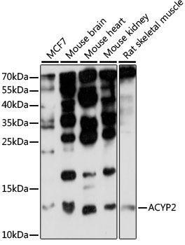 Signal Transduction Antibodies 2 Anti-ACYP2 Antibody CAB15636