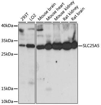 Epigenetics and Nuclear Signaling Antibodies 2 Anti-SLC25A5 Antibody CAB15639