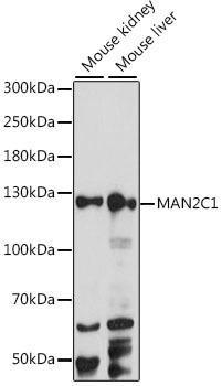 Signal Transduction Antibodies 2 Anti-MAN2C1 Antibody CAB15688