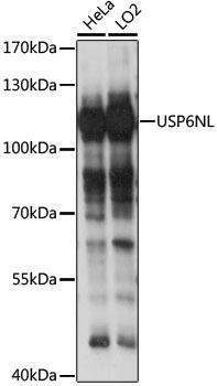 Signal Transduction Antibodies 2 Anti-USP6NL Antibody CAB15763