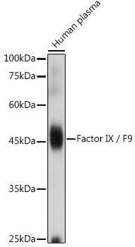 Cardiovascular Antibodies Anti-Factor IX / F9 Antibody CAB1578