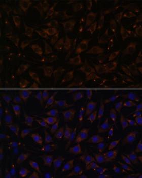 Signal Transduction Antibodies 2 Anti-PLLP Antibody CAB15834