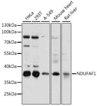 Signal Transduction Antibodies 2 Anti-NDUFAF1 Antibody CAB15835