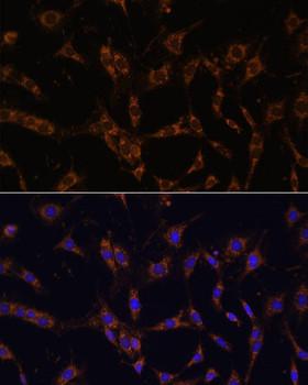 Signal Transduction Antibodies 2 Anti-UBE2J1 Antibody CAB15841