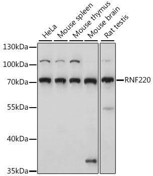 Signal Transduction Antibodies 2 Anti-RNF220 Antibody CAB15853