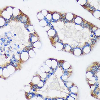 Signal Transduction Antibodies 2 Anti-TRIM62 Antibody CAB15855