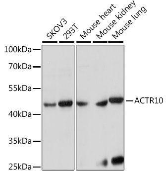 Signal Transduction Antibodies 2 Anti-ACTR10 Antibody CAB15867
