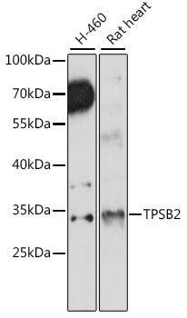 Immunology Antibodies 2 Anti-TPSB2 Antibody CAB15887