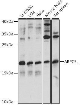 Signal Transduction Antibodies 2 Anti-ARPC5L Antibody CAB15904
