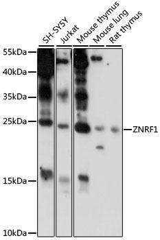Signal Transduction Antibodies 2 Anti-ZNRF1 Antibody CAB15918