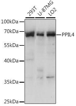 Signal Transduction Antibodies 2 Anti-PPIL-4 Antibody CAB15920