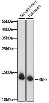 Signal Transduction Antibodies 2 Anti-RBP7 Antibody CAB15939