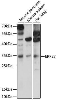 Signal Transduction Antibodies 2 Anti-ERP27 Antibody CAB15944