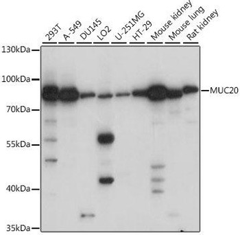 Cell Biology Antibodies 6 Anti-MUC20 Antibody CAB15968