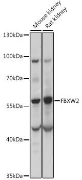 Signal Transduction Antibodies 2 Anti-FBXW2 Antibody CAB15996