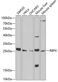Signal Transduction Antibodies 2 Anti-RBP4 Antibody CAB1600
