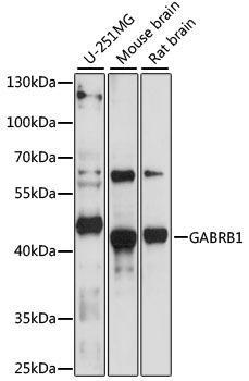 Signal Transduction Antibodies 2 Anti-GABRB1 Antibody CAB16015
