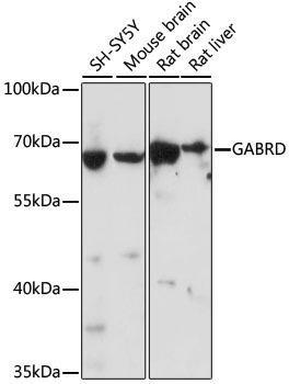 Signal Transduction Antibodies 2 Anti-GABRD Antibody CAB16016