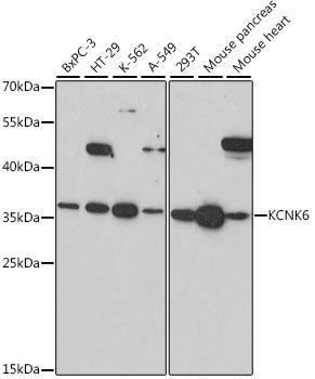 Signal Transduction Antibodies 2 Anti-KCNK6 Antibody CAB16087