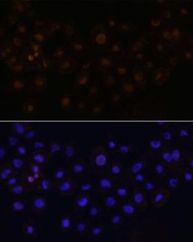Signal Transduction Antibodies 2 Anti-HEY1 Antibody CAB16110