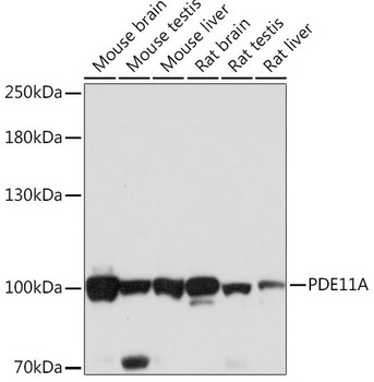 Signal Transduction Antibodies 2 Anti-PDE11A Antibody CAB16121