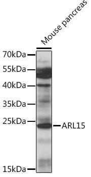 Signal Transduction Antibodies 2 Anti-ARL15 Antibody CAB16127
