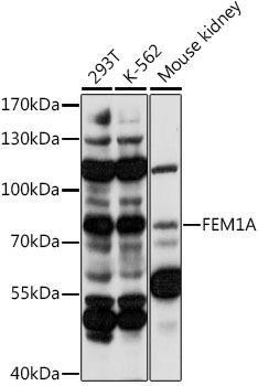 Signal Transduction Antibodies 2 Anti-FEM1A Antibody CAB16129