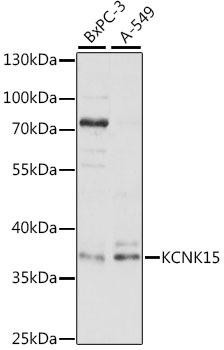 Signal Transduction Antibodies 2 Anti-KCNK15 Antibody CAB16140