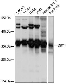 Signal Transduction Antibodies 2 Anti-GET4 Antibody CAB16190