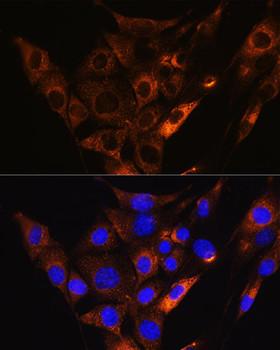 Signal Transduction Antibodies 2 Anti-HCN1 Antibody CAB16198