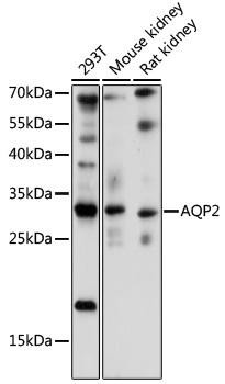 Signal Transduction Antibodies 2 Anti-AQP2 Antibody CAB16209