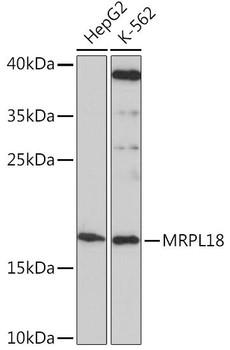 Signal Transduction Antibodies 2 Anti-MRPL18 Antibody CAB16231