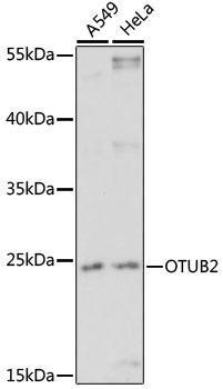 Signal Transduction Antibodies 2 Anti-OTUB2 Antibody CAB16251