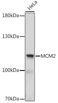 Cell Cycle Antibodies 1 Anti-MCM2 Antibody CAB16276